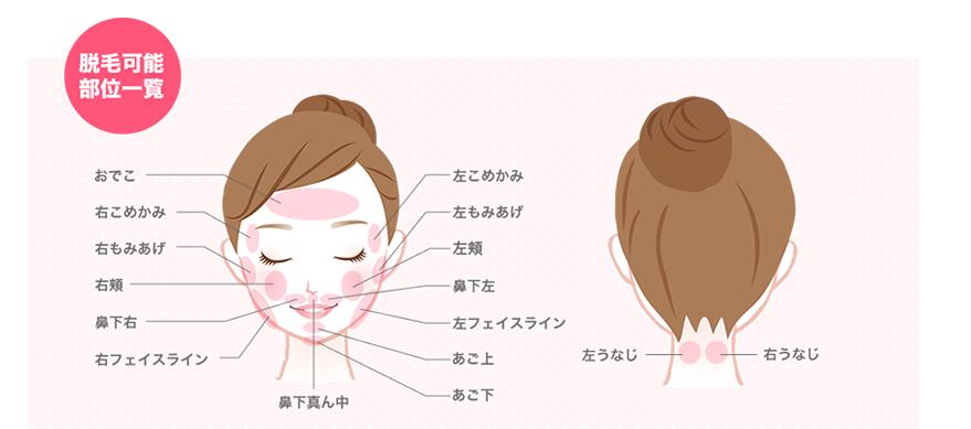 もみあげの部位の脱毛が出来るストラッシュの脱毛部位